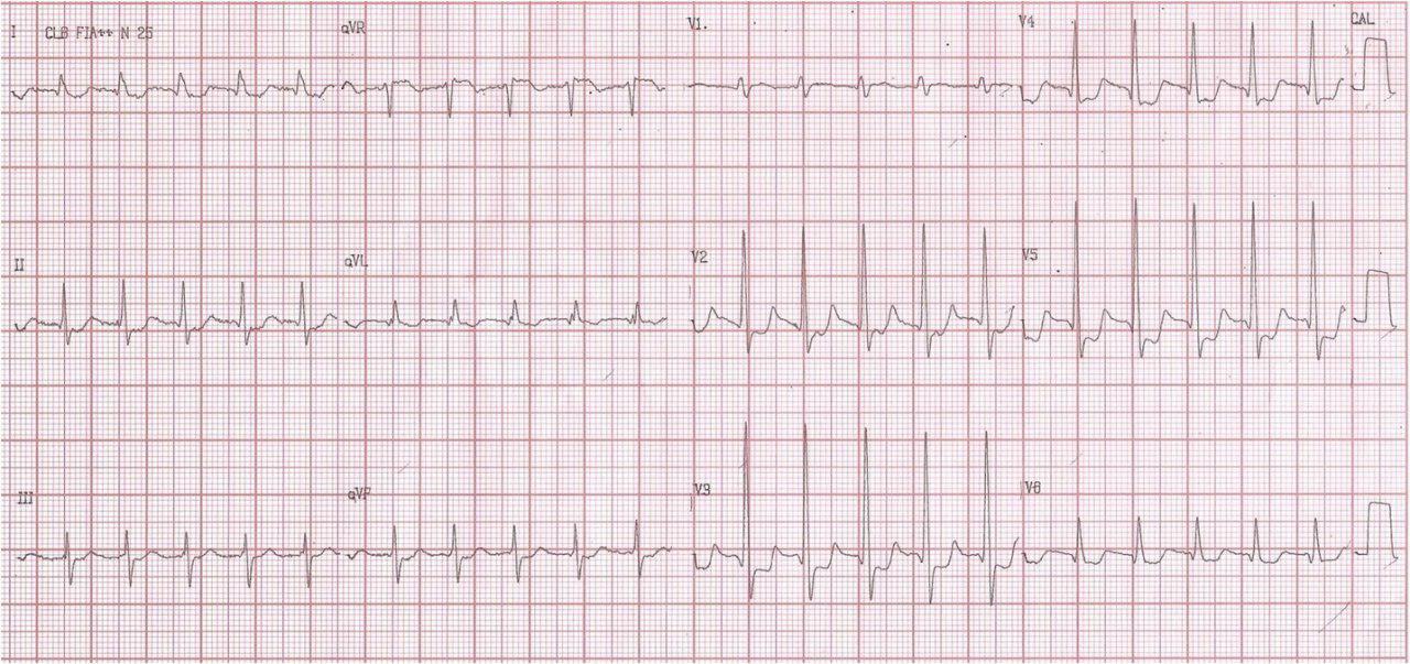 Paciente de 74 años con angor prolongado. Taquicardia de QRS angosto que revierte con adenosina y severa enfermedad coronaria