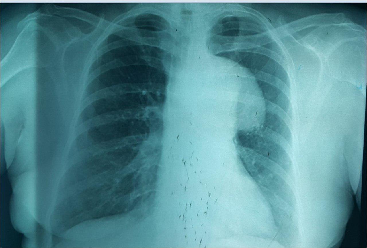 Mujer de 68 años hipertensa, con ronquera por aneurisma de aorta con compresión de nervio recurrente