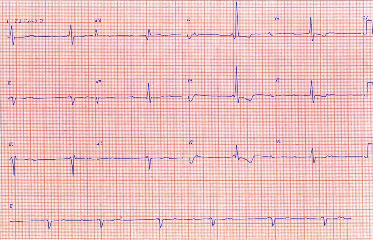 Endocarditis infecciosa con  trastornos de conducción por absceso del anillo valvular