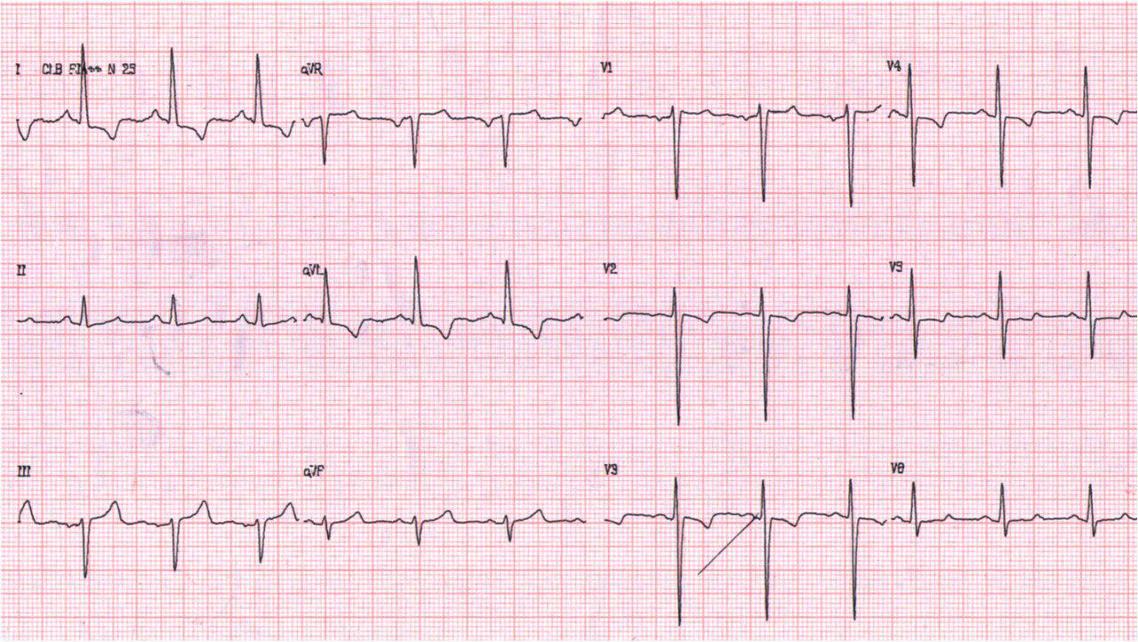 Paciente de 54 años con angor prolongado, dextrocardia y suboclusión de TCI