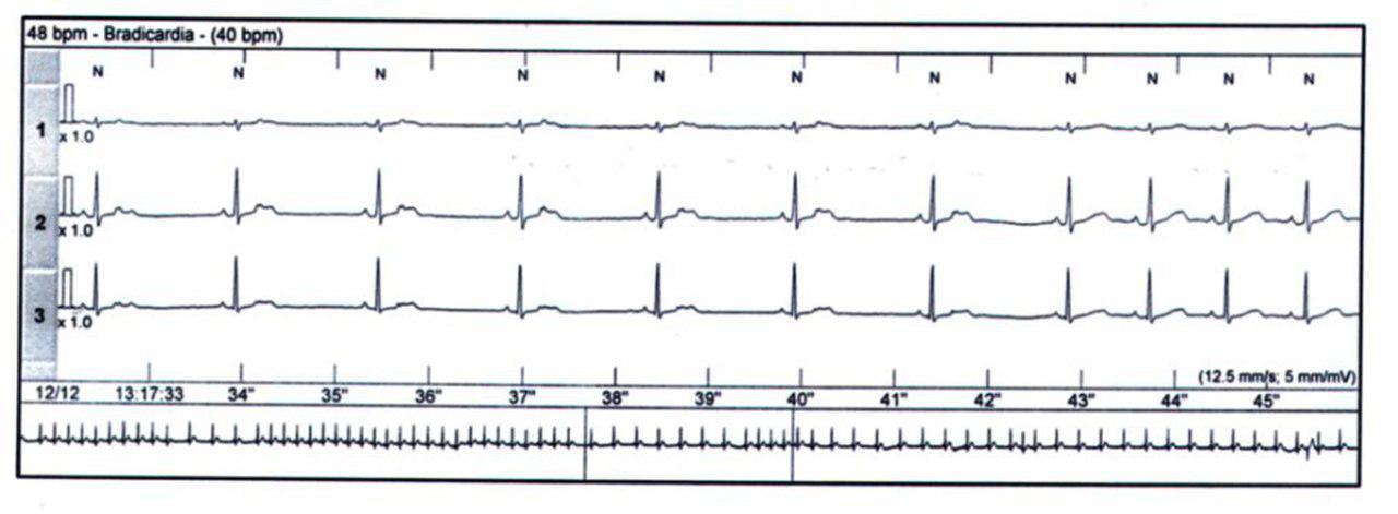 ESV bloquedas que determinan bradicardia y episodio de aleteo auricular
