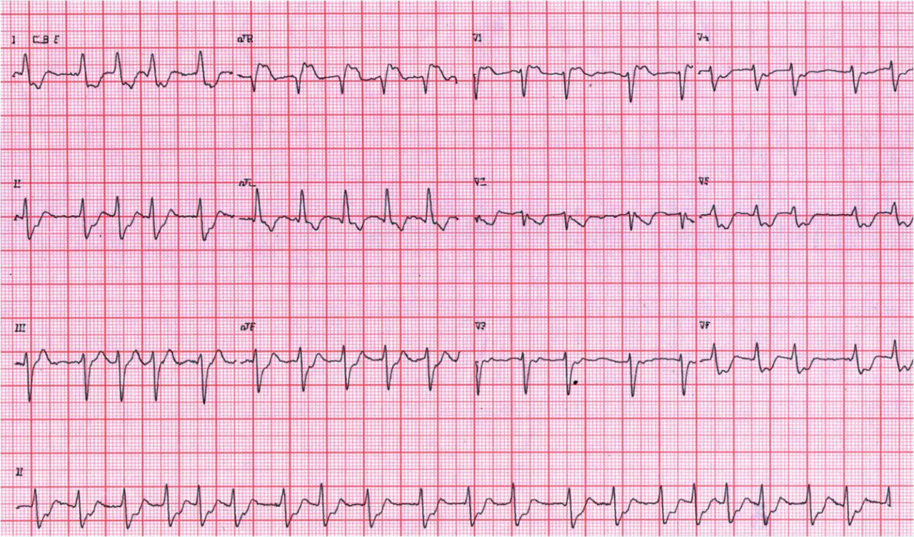Masculino de 70 años con angor prolongado y palpitaciones por lesión de tronco de coronaria izquierda
