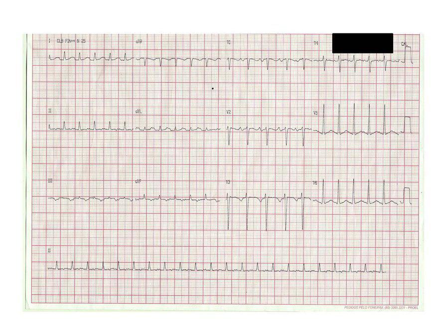 Paciente de 27 años con taquicardia auricular derecha baja recurrente