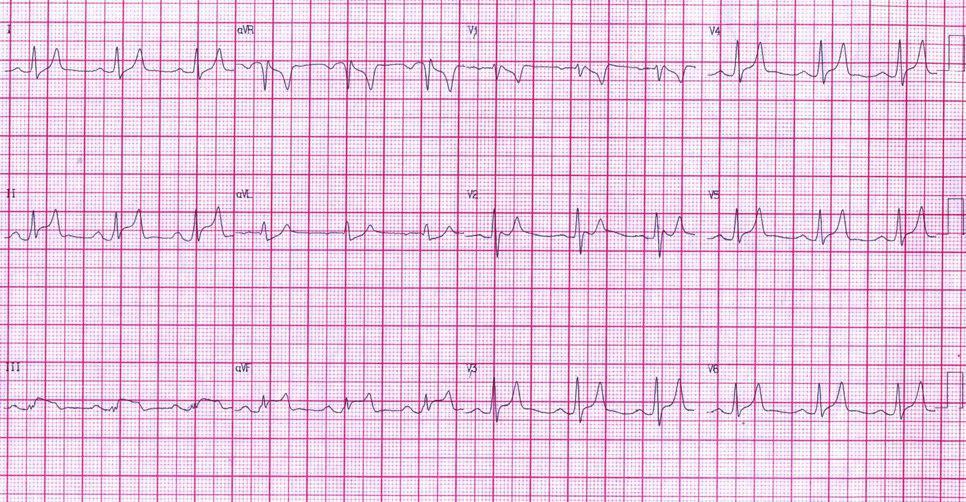 Paciente de 71 años con severa hiperpotasemia de 8,5 mEq/l simulando en ECG un SCA y luego de la corrección