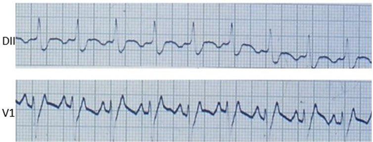 Taquicardia auricular 2 a 1 en paciente con reemplazo valvular mitral