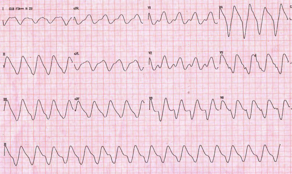 Taquicardia de QRS ancho con trastorno inespecífico de conducción por hiperpotasemia