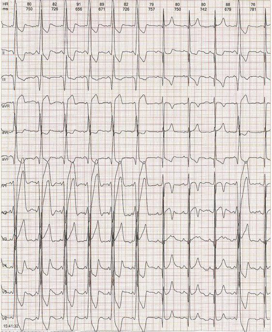 Paciente con diagnóstico previo de BRI que presenta WPW intermitente  asociado a memoria cardíaca