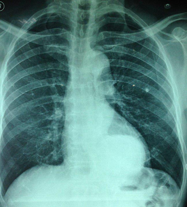 Paciente de 66 años, HTA y fumador con aneurisma tóracoabdominal. Reparación quirúrgica y endovascular