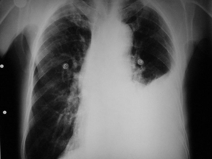 Masculino de 75 años, hipertenso con dolor toráccico por ruptura de aorta y hemotórax