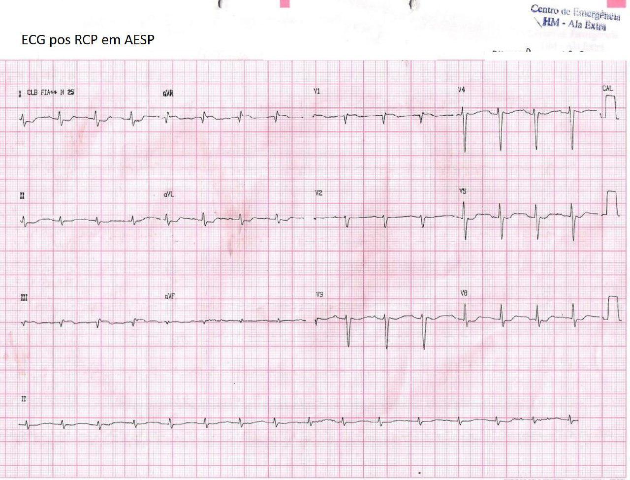 Paciente de 72 años con disnea y sudoración que presenta actividad eléctrica sin pulso por TEP que simula infarto de VD