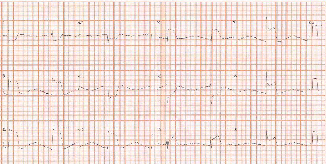 Paciente de 52 años con Infarto inferior con extensión al VD complicado con BAVC