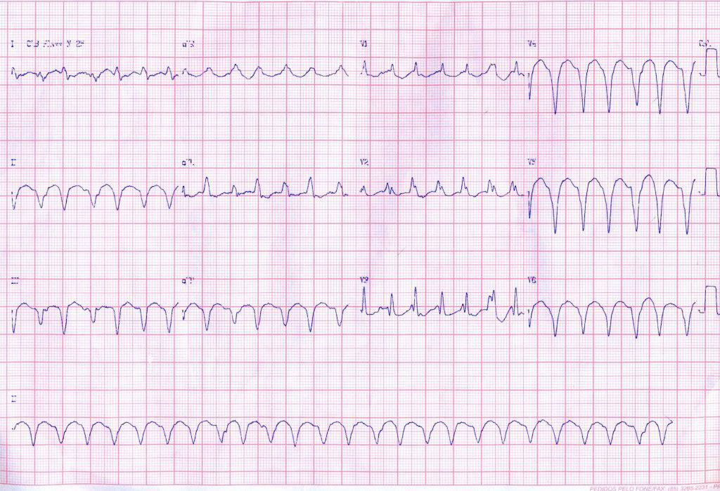 Paciente chagásica con aneurisma VI que desarrolla episodios de TV que no responden a sobrestimulación