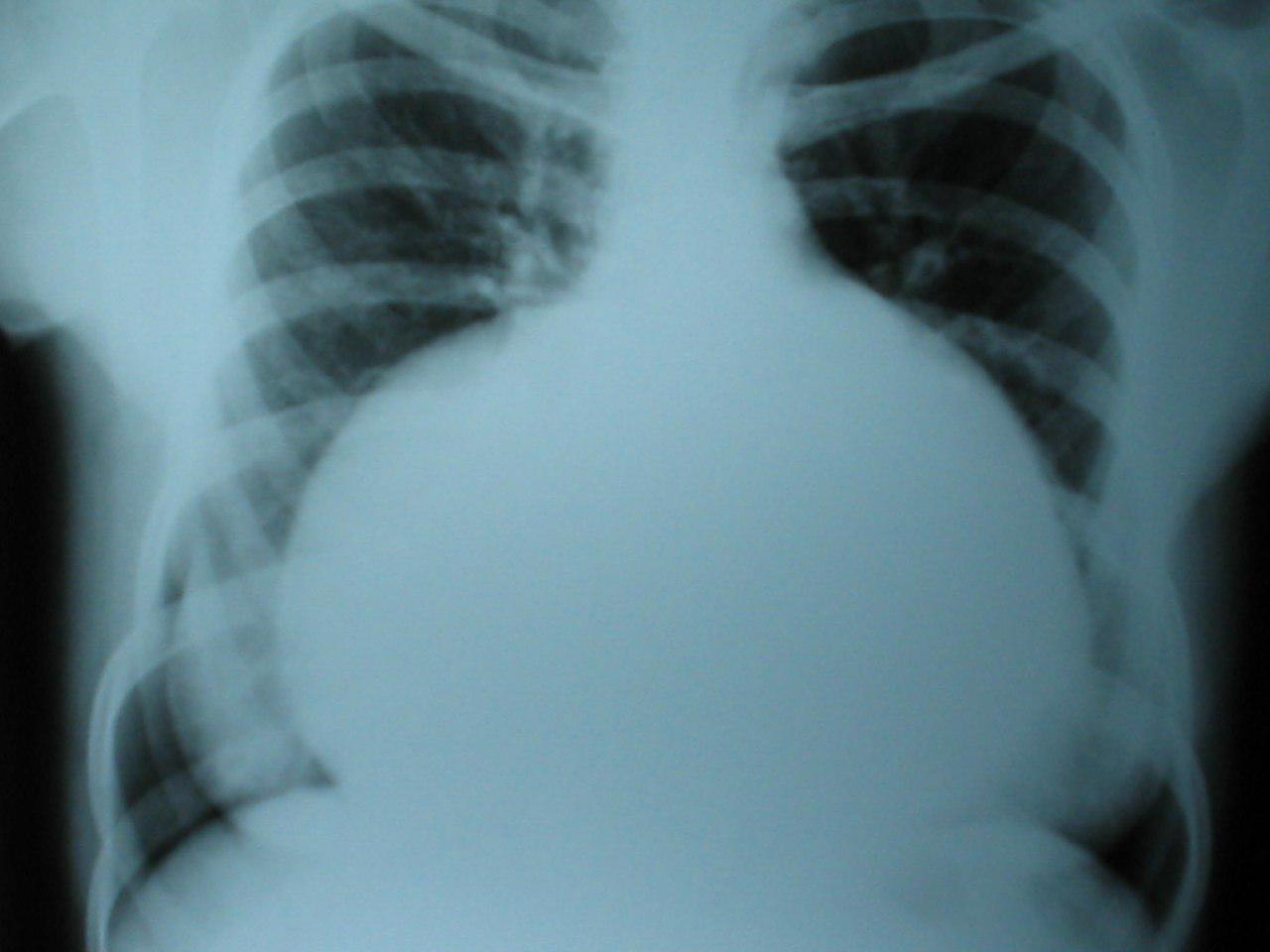 Paciente con reemplazo valvular mitral con severa insuficiencia protésica e insuficiencia tricuspídea