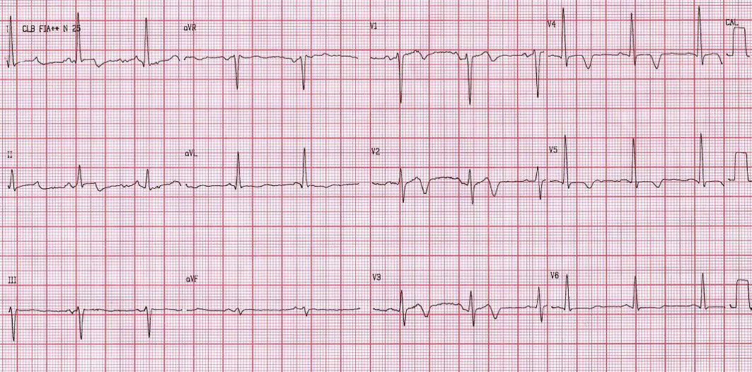 Paciente HTA y DBT con síndrome vertiginoso simulando un SCA, con aumento de troponina. ACV cerebeloso