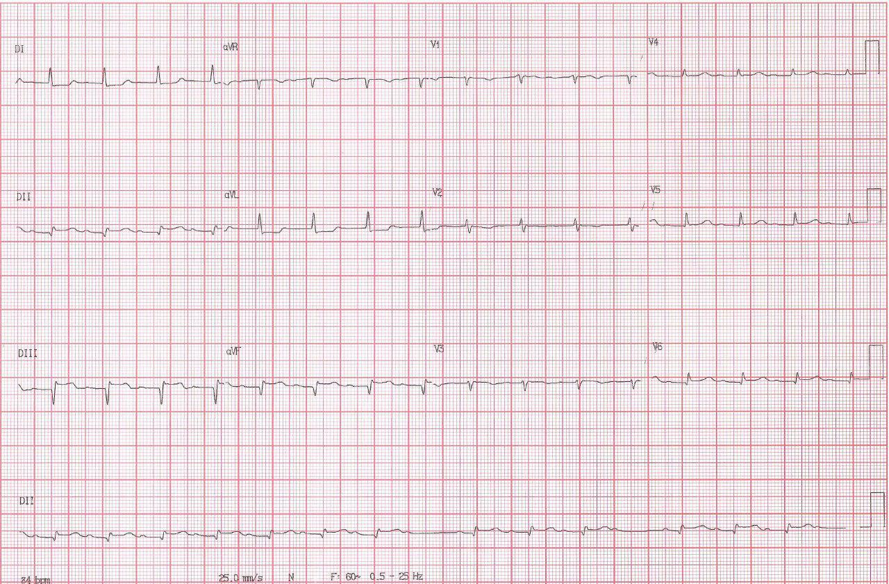SCACEST con compromiso de VD e inestabilidad hemodinámica