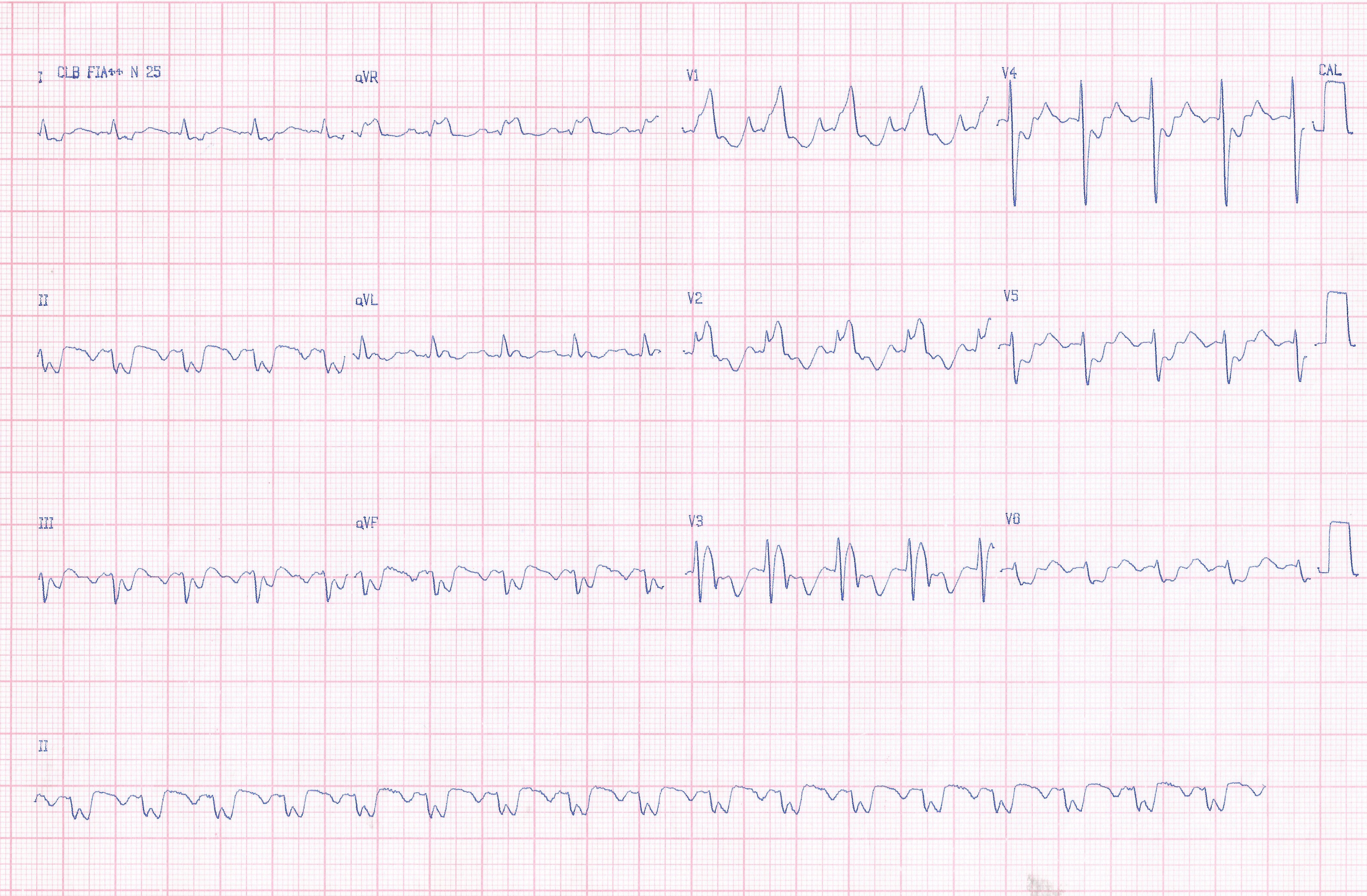 Masculino de 32 años con miocardiopatía hipertrófica no obstructiva con angor y palpitaciones