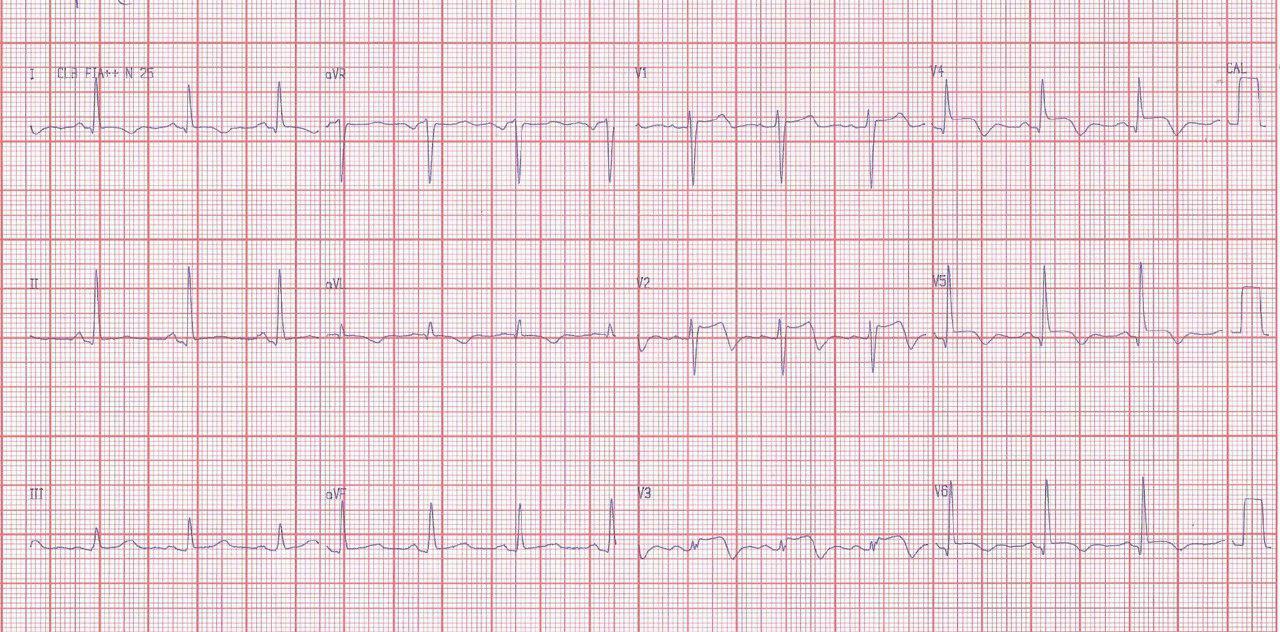 Síndrome de Tako Tsubo en mujer hipotiroidea con enfermedad arterial oclusiva de MI