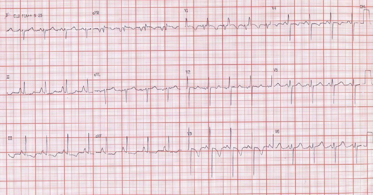 Mujer de 27 años con disnea de reposo por estenosis mitral severa e hipertensión pulmonar