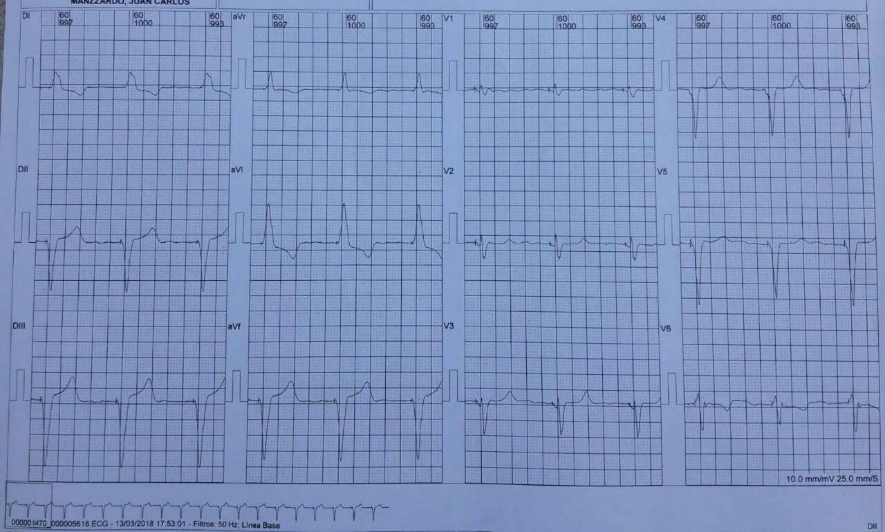 Mujer de 85 años con miocardiopatía chagásica crónica portadora  de MP VVI