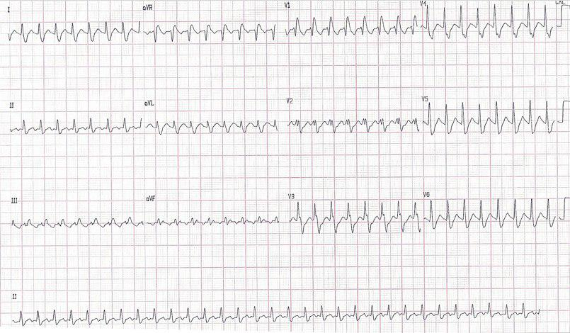 Joven de 27 años con taquicardia por reentrada ortodrómica y BCRD previo