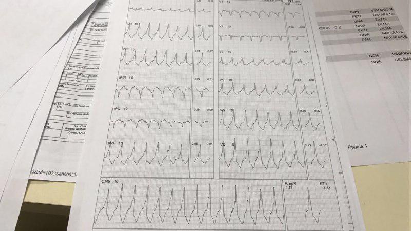 Taquicardia catecolaminérgica originada en TSVD durante test ergométrico