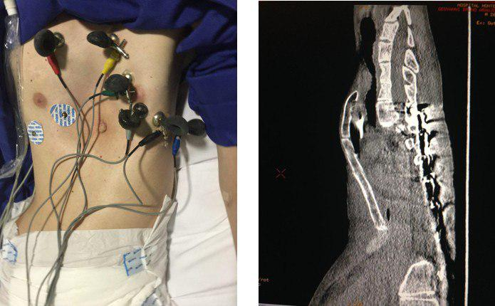 Paciente de 17 años con síndrome de Marfan, pectum excavatum y fenocopia de Brugada