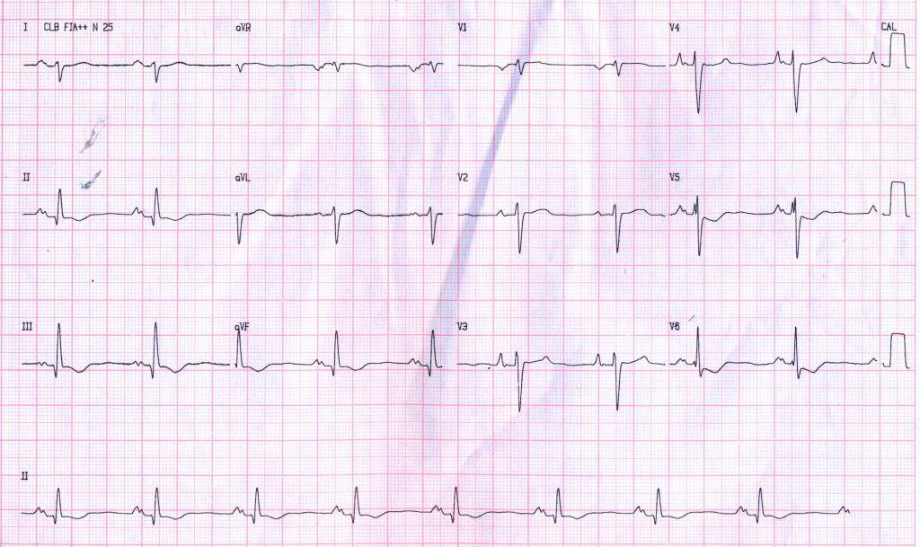 Paciente de 37 años con angor, disnea y síncope originados en miocardiopatía restrictiva por amiloidosis