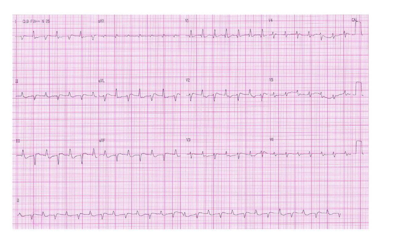 Mujer de 75 años, HTA con FA crónica que presenta taquicardia ventricular bidireccional por intoxicación digitálica
