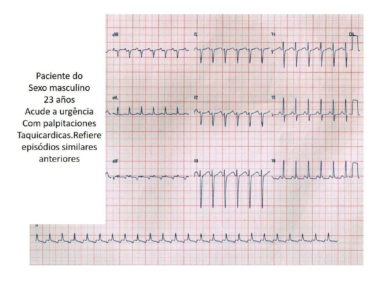 Paciente de 23 años con taquicardia incesante de Coumel