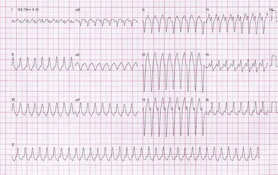 Taquicardia ventricular monomorfa del TSVD en paciente de 39 años