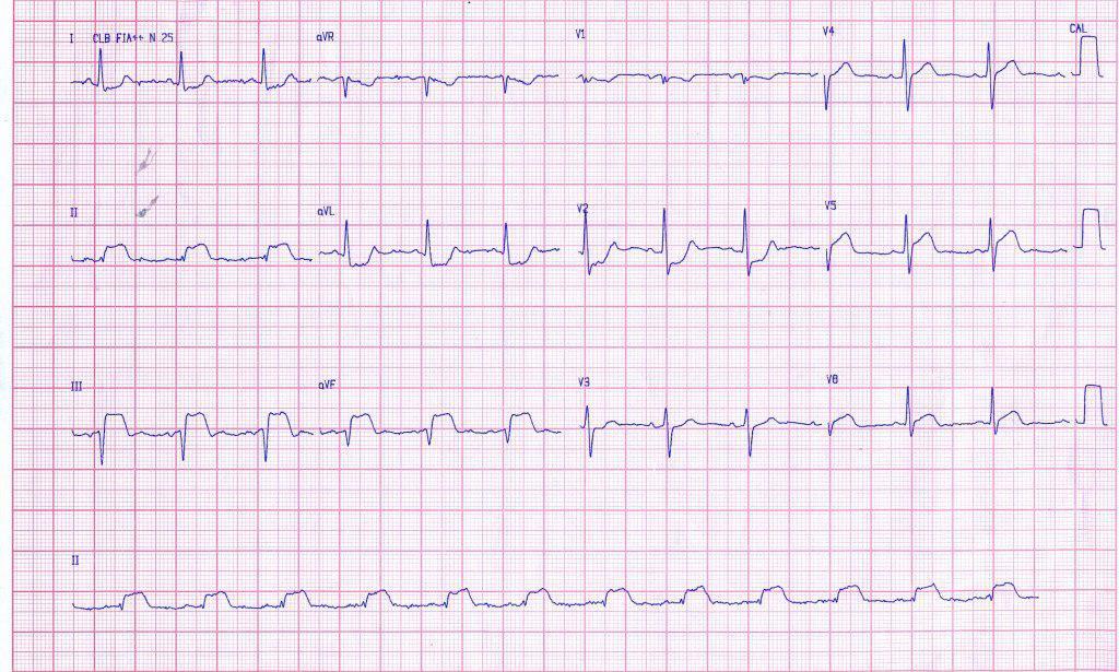 Síndrome coronario agudo por oclusión de CD y posterior angioplastia exitosa