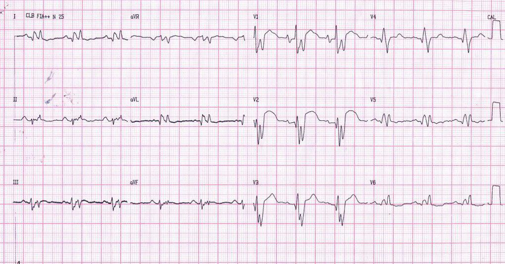 Paciente portador de miocardiopatía hipertrófica que evoluciona a miocardiopatía dilatada