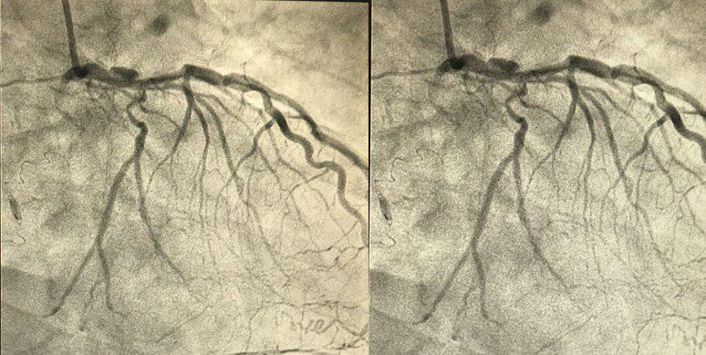 CCG de paciente HIV + con cuadro de angina inestable