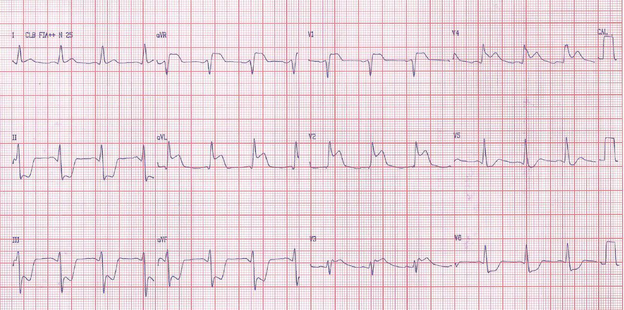 Mujer de 56 años hipertensa con angor prolongado que desarrolla shock cardiogénico por disección aórtica de tipo A