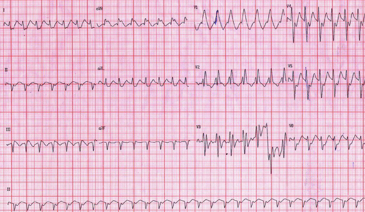 Taquicardia supraventricular con aberrancia por BRD + HbAI en joven de 27 años