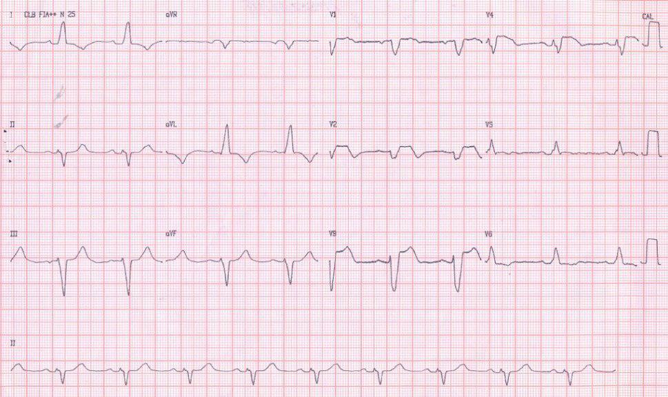 Paciente de 65 años presenta SCA por oclusión de DA proximal con trastorno de conducción alternante y no reperfusión post angioplastia