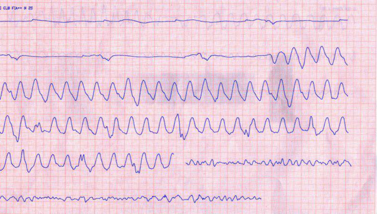 Hombre de 41 años con paro cardíaco extrahospitalario debido a Síndrome de Brugada