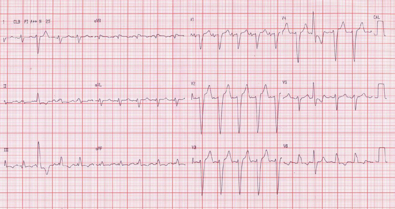 Paciente portador de miocardiopatía dilatada con insuficiencia cardíaca y BCRI