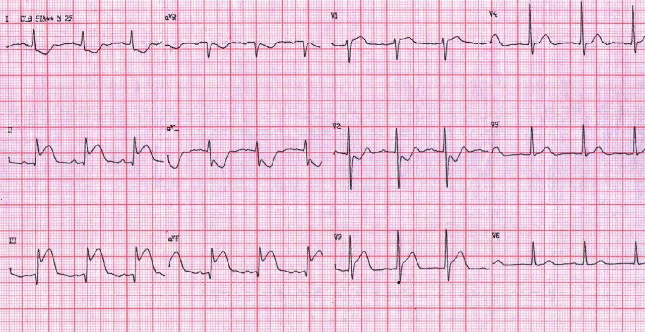 IAM inferior con extensión a VD por oclusión de CD proximal