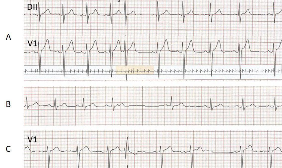 Paciente de 40 años con palpitaciones por extrasistolia auricular de comportamiento variable