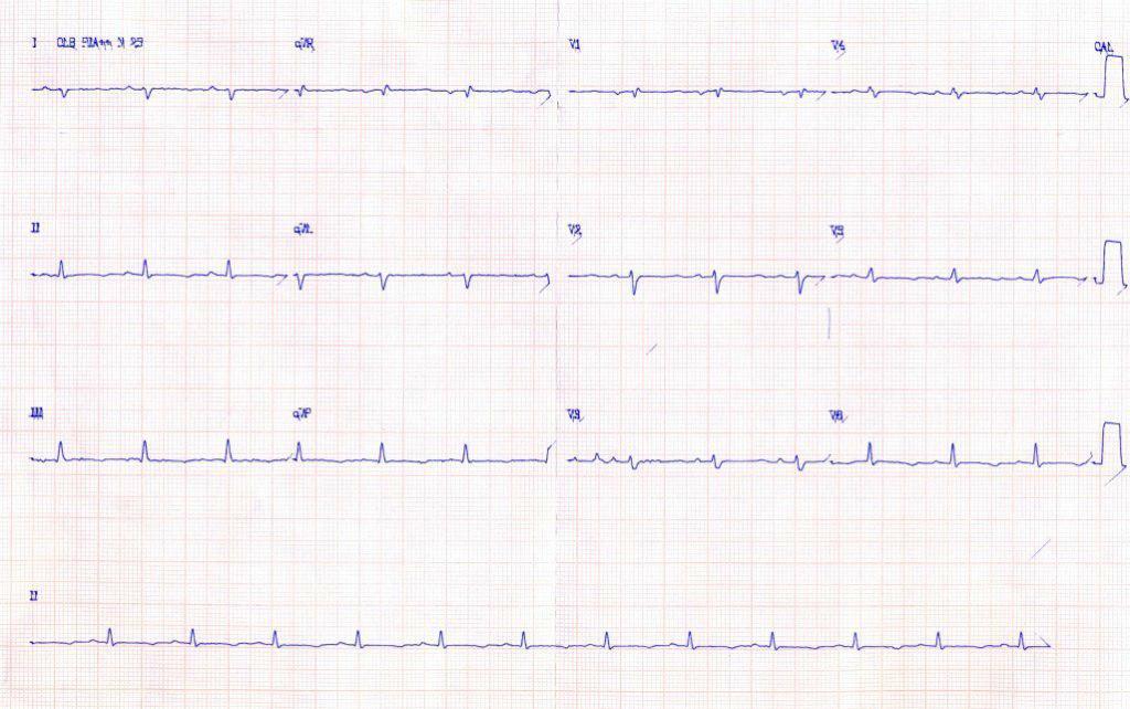 Femenina de 36 años, tiroidectomizada por CA, con cuadro de hipocalcemia; presenta dilatación de cavidades derechas
