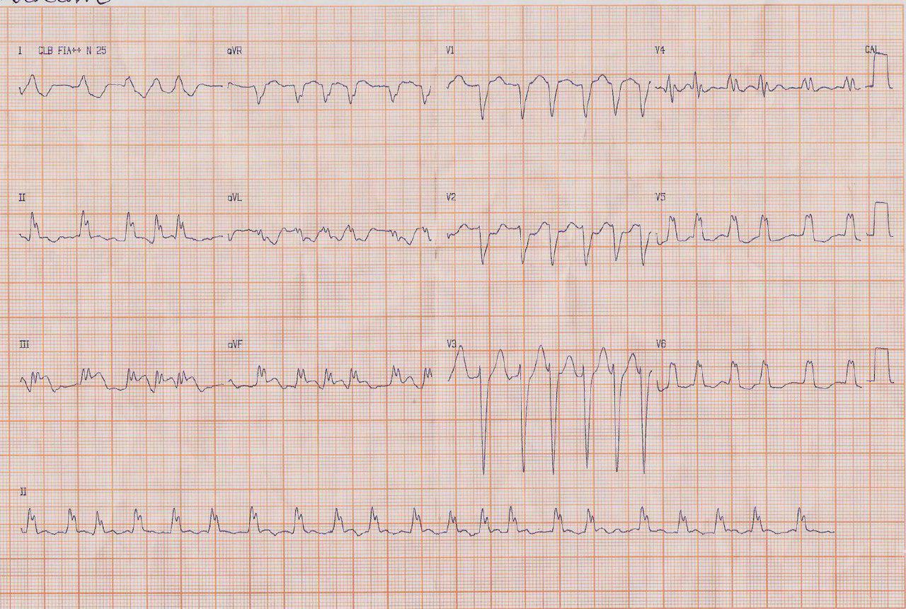 Femenina de 49 años con FA crónica que presenta SCA por probable embolia en coronaria derecha