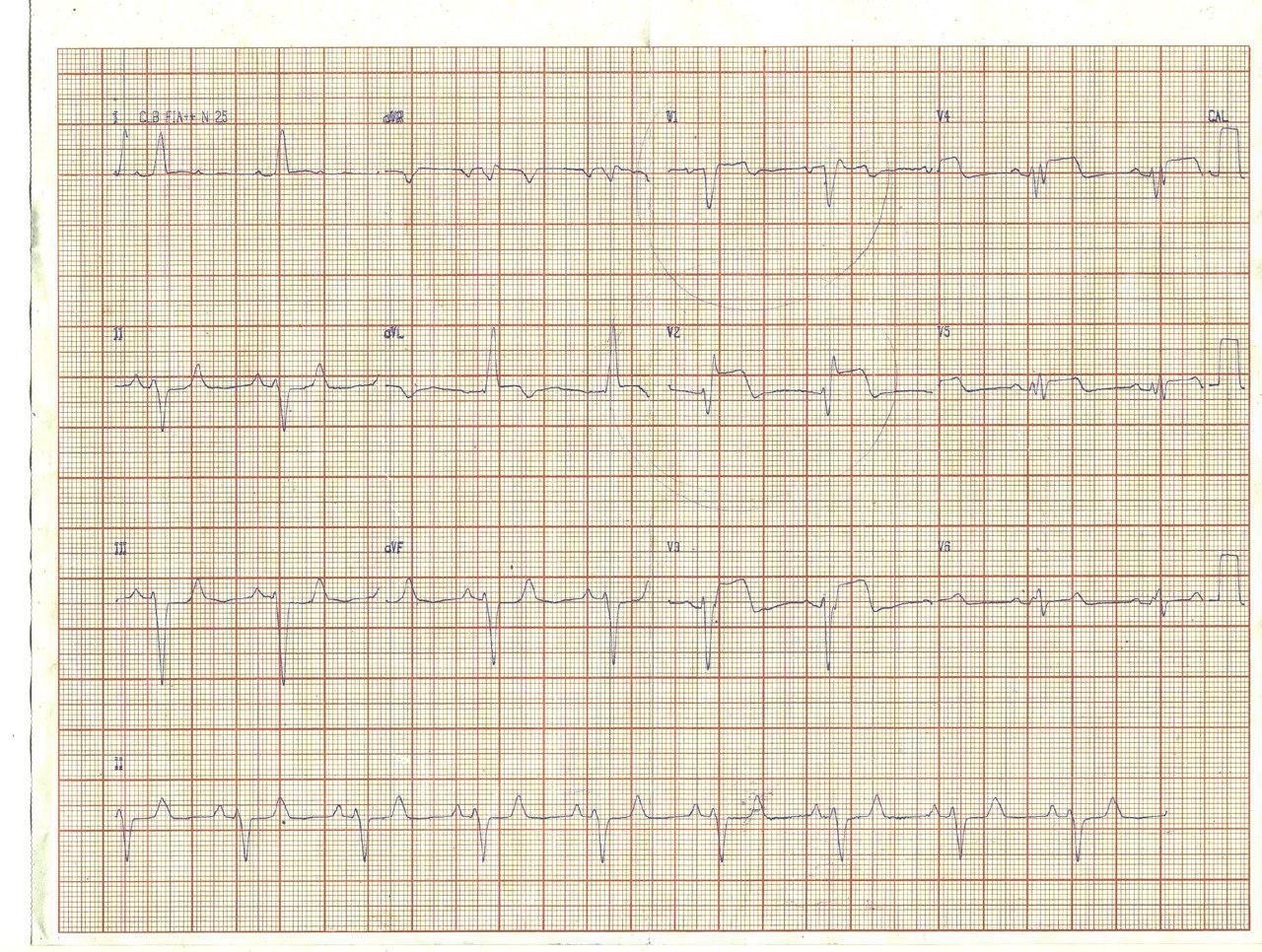 Femenina de 46 años con factores de riesgo que desarrolla IAMCEST complicado con BAV de alto grado tratada con angioplastia y que presenta FV irreversible