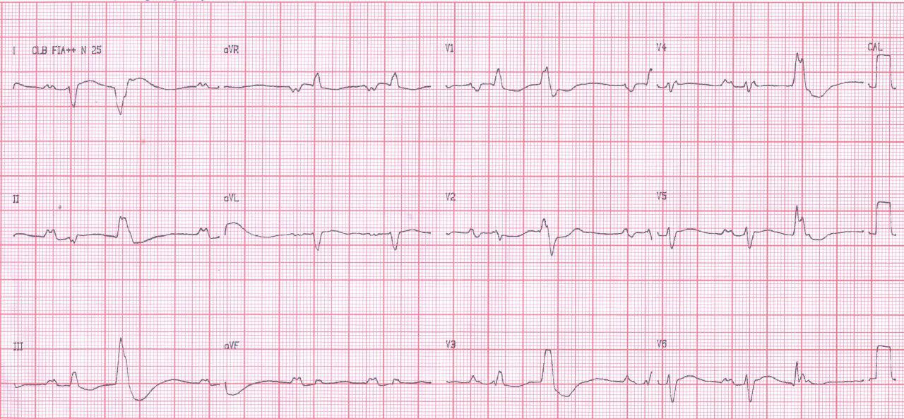 Femenina de 25 años con miocardiopatía hipertrófica severa, presenta FV durante la consulta
