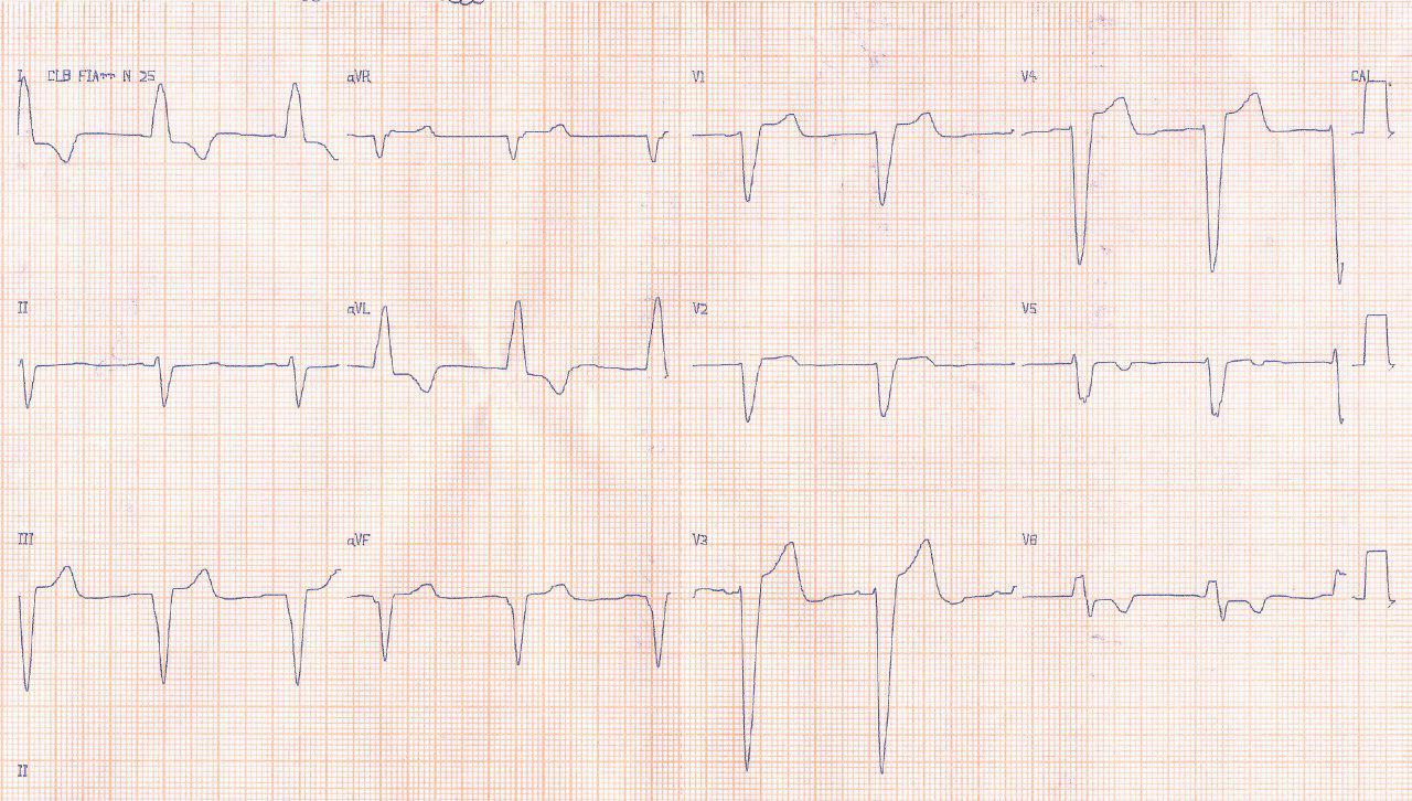 Hombre de 70 años, hipertenso con angor y disnea de esfuerzo, con soplo sistólico por estenosis aórtica grave calcificada y obstrucción importante de la arteria Cx y CD