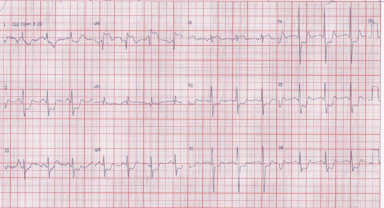 Paciente de 51 años con factores de riesgo que presenta angor y episodio sincopal en el que la CCG constata lesión de TCI