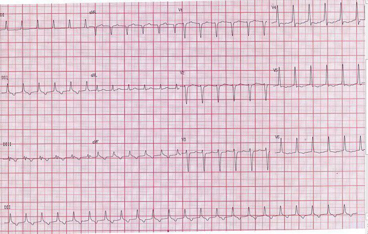 Paciente de 47 años que presenta taquicardia ortodrómica por vía anómala que se controla con amiodarona a posteriori de lo cual presenta síncope con constatación de QT largo