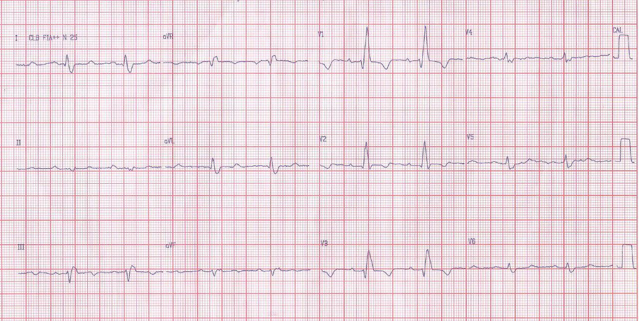 Paciente de 56 años con transplante cardíaco hace 8 que presenta BCRD + BDAM y crecimiento de VD