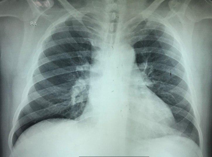 Paciente obeso con cuadro de disnea súbita por TEP con patrón S1Q3T3 en el ECG