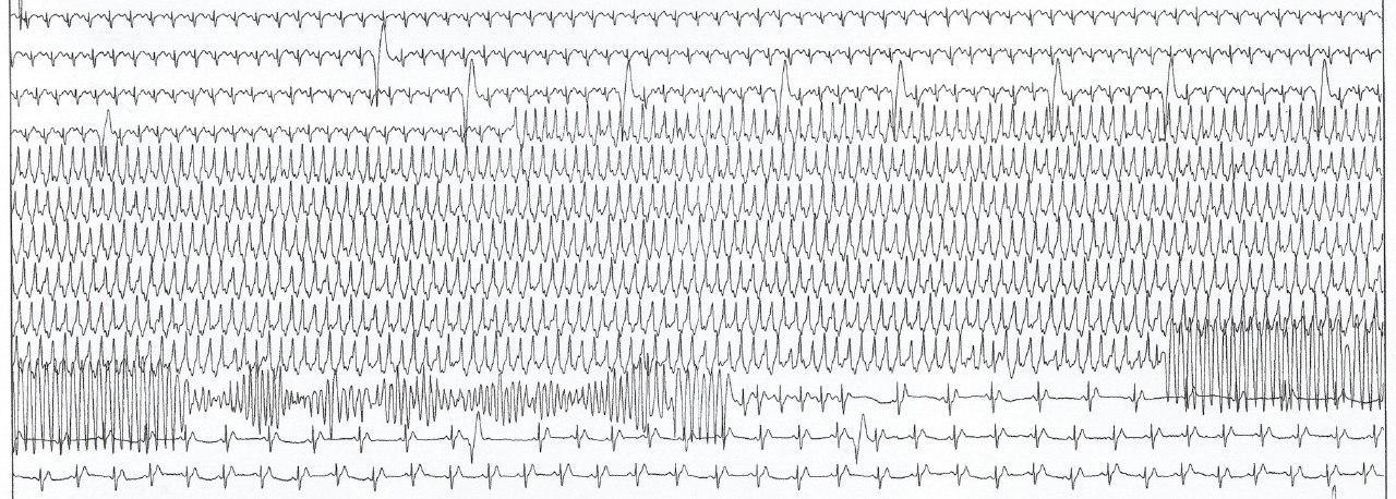 Hombre de 51 años portador de miocardiopatía arritmogénica de VI presenta TV y torsade de ponte durante PEG